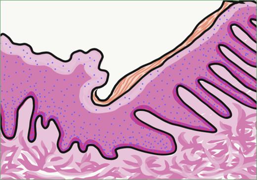 illustration of oral mcuosa