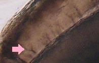 histology of the dentin-enamel junction