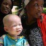 10f.albinism