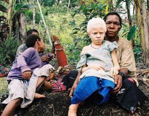 13.Albinistic_girl_papua_new_guinea