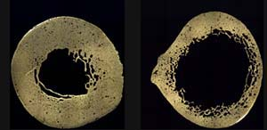 The femur cross-section on right shows significant reduction in bone thickness and reduced density near the inner surface.