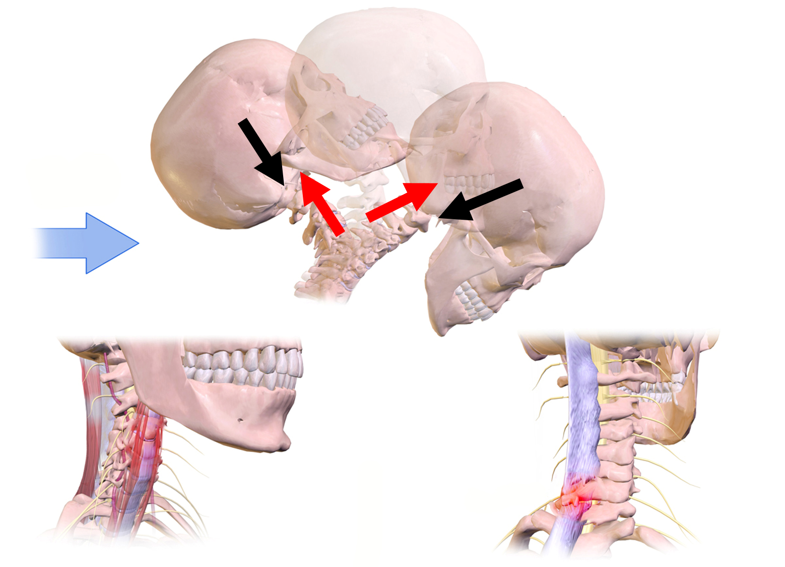 First image: The spine in a near vertical position while the head is moving from an extreme rearward position forward to a face-down position. Force pairs of equal length and opposite direction shown the force of the neck on the head and head back on the neck. Second and third images: Regions of injury on the front of the neck (soft tissue) and back of the neck (soft tissue and spine) are highlighted.