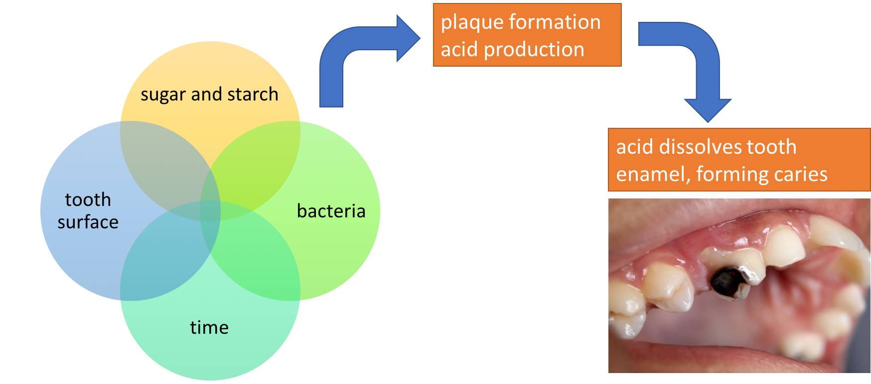 "The image is a schematic. On the left, it shows a Venn diagram with four circles coming together, with the words ""tooth surface,"" ""sugar and starch,"" ""bacteria,"" and ""time."" When these 4 factors are present, the schematic shows that it results in plaque formation and acid production. This then leads to acid dissolving tooth enamel, forming dental caries. A photo shows a tooth with a severe cavity, with half of the tooth blackened."