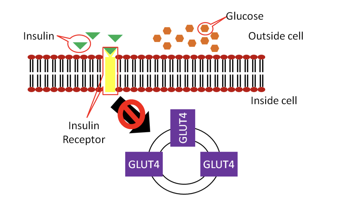Schematic showing that in type 2 diabetes, the cell does not respond appropriately to insulin, so glucose is stuck outside the cell.