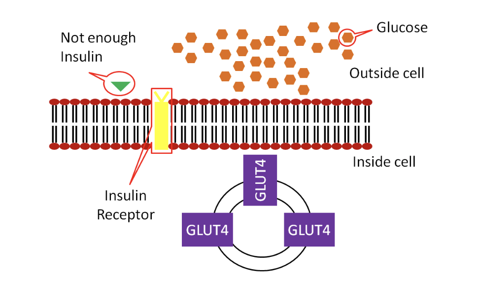 Schematic showing that in type 1 diabetes, the pancreas does not make enough insulin, so glucose transporters (GLUT-4) do not open on the cell membrane, and glucose is stuck outside the cell.
