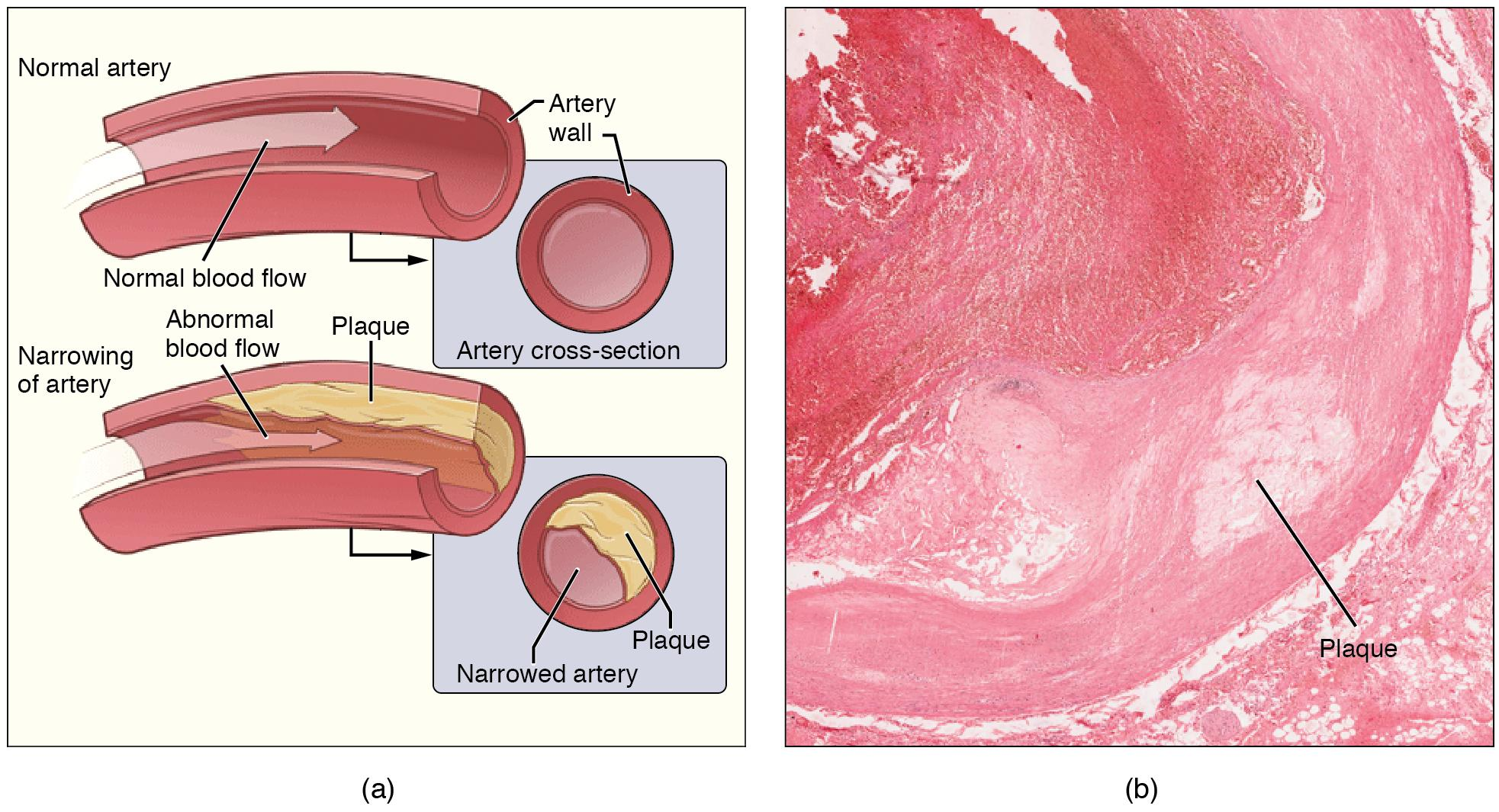 On the left is a cartoon showing a normal artery and one with atherosclerosis, in which a plaque has formed, impeding normal blood flow. On the right, a tissue section viewed under a microscope shows buildup of connective tissue in the artery wall