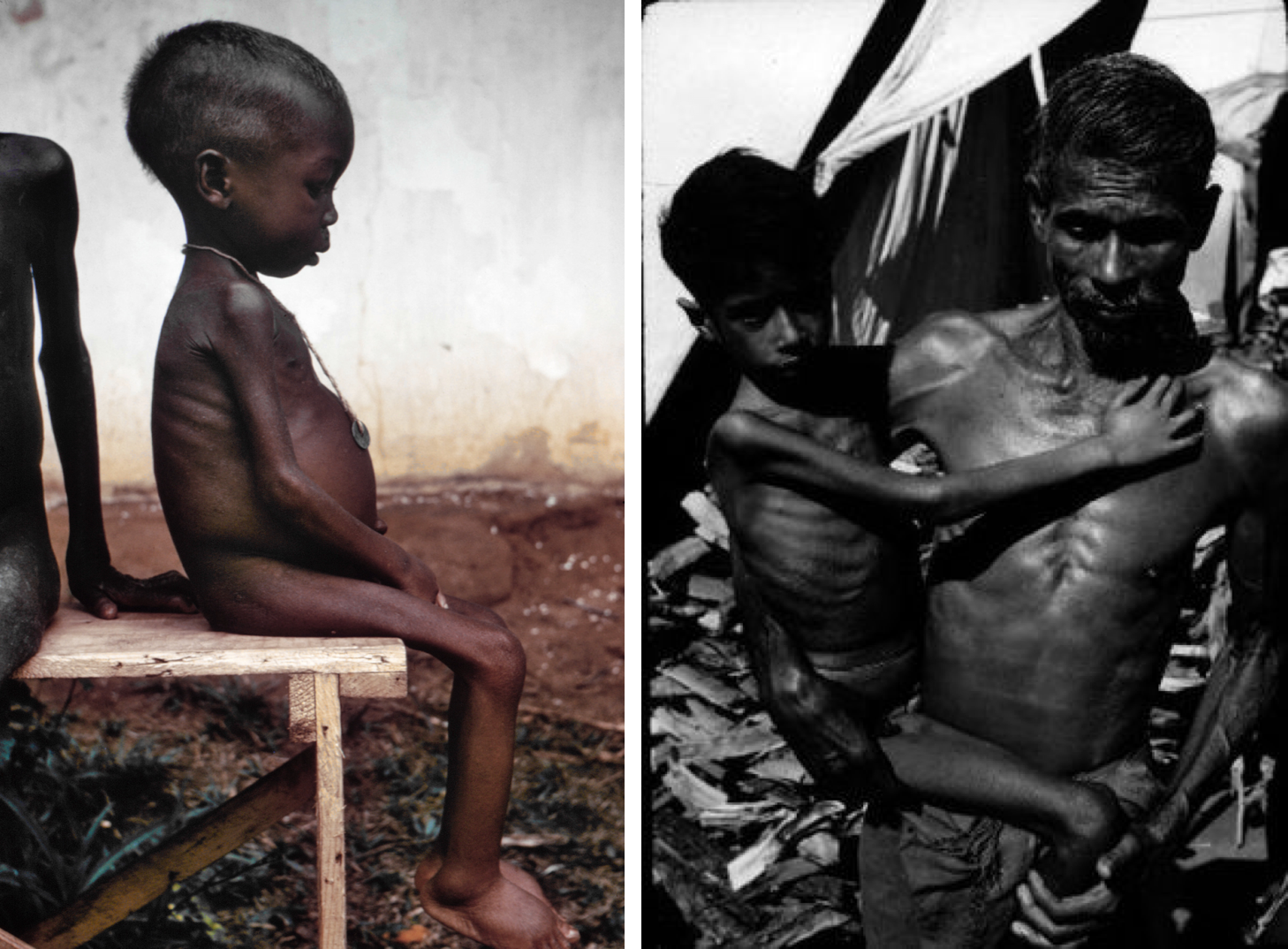 Two photos show children suffering from protein energy malnutrition. On the left is a child with kwashiorkor, showing the hallmark swollen belly. On the right is a child with marasmus, showing very thin limbs and visible ribs, no swollen belly.