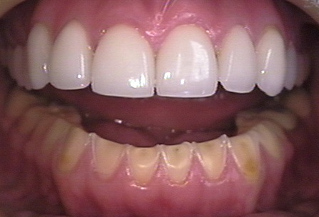 This photo shows an open mouth with both the upper teeth and lower teeth in view. The lower teeth show erosion caused by bulimia. For comparison, the upper teeth were restored with porcelain veneers.