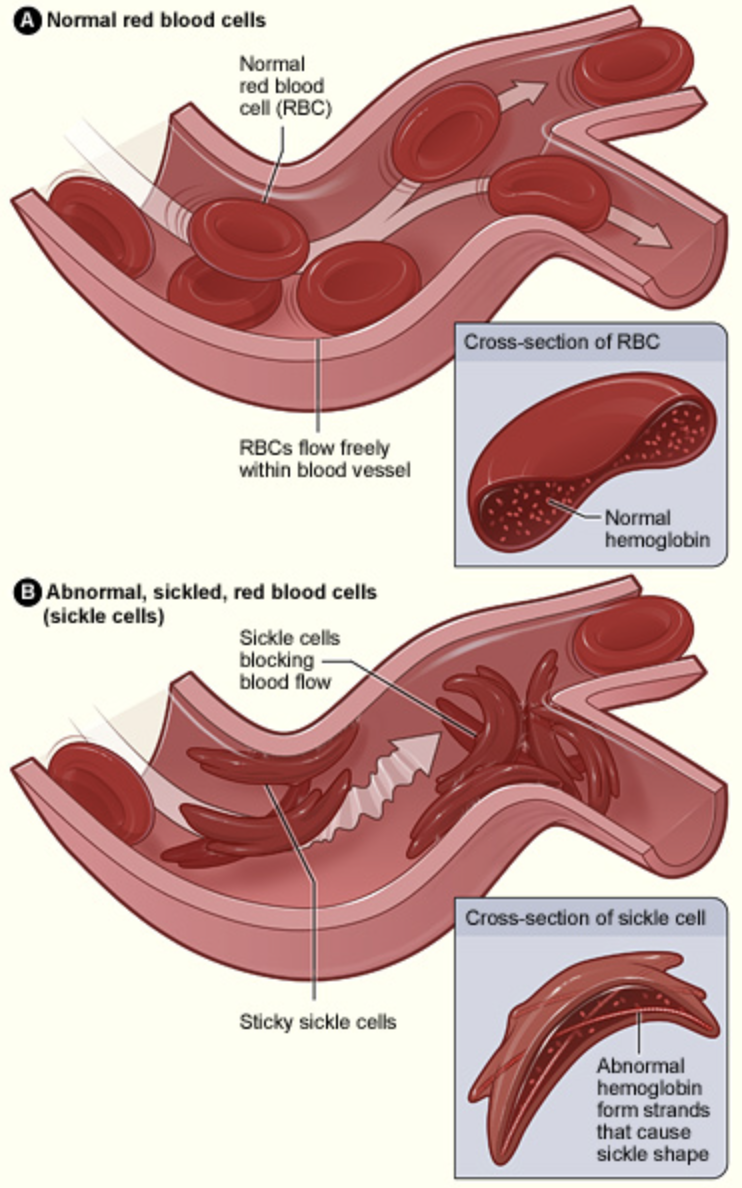 Illustration shows the normal donut shaped red blood cells and how blood flow is not disrupted. Then compares this to the sickle cell red blood cells that look like crescents, and how these can block blood flow.
