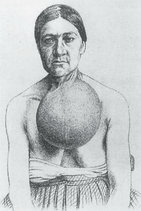A picture of a woman with goiter. Her neck is swollen just below the chin to the size of a small melon.