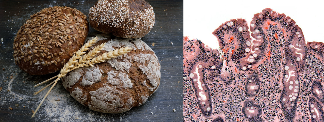 At left is a photo of 3 loaves of bread, with several stalks of dried wheat laid across their tops. At right is a section of a small intestine biopsy, shown magnified so that cells forming the villi are visible. Rather than being finger-like projections, the villi are blunted and short.