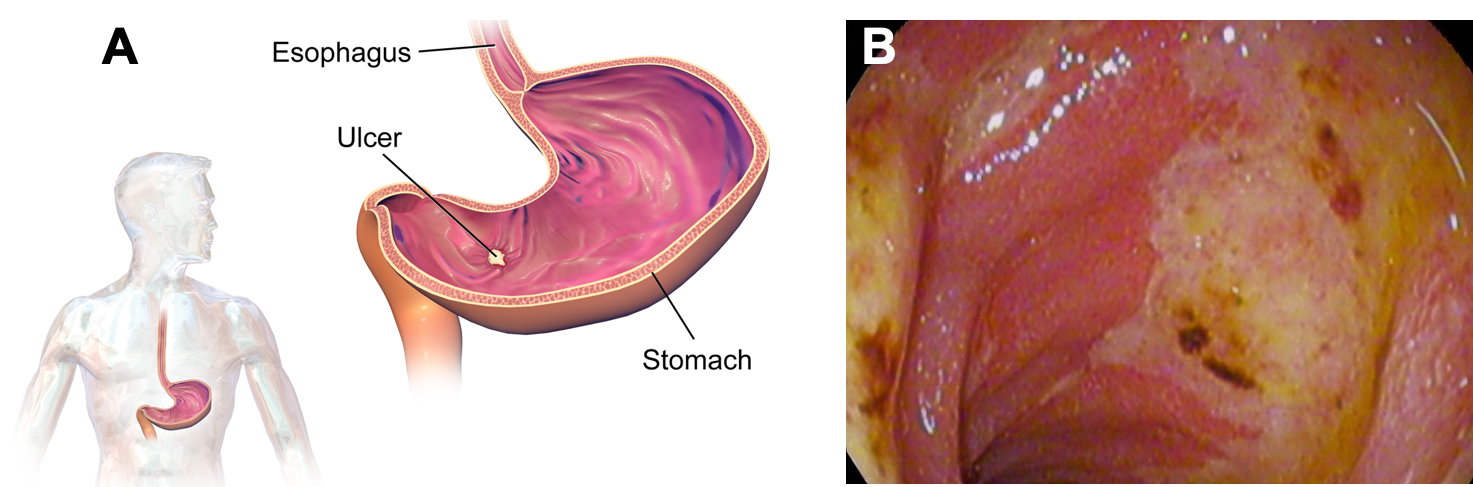 At left is a cartoon showing a profile of a person's torso, with the stomach and esophagus highlighted. Next to it is a larger version of the drawing of a stomach, with a yellow-colored ulcer shown on the stomach's lining. At right is an image from an endoscopy, showing the lining of the duodenum with abnormal lesions that are yellow, white, and brown in color compared to the normal pink tissue around it.