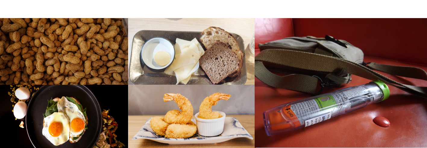 A collage of photos shows common food allergens (peanuts, a tray of bread and cheese, fried eggs, and fried shrimp), plus a photo of an EpiPen next to a purse.