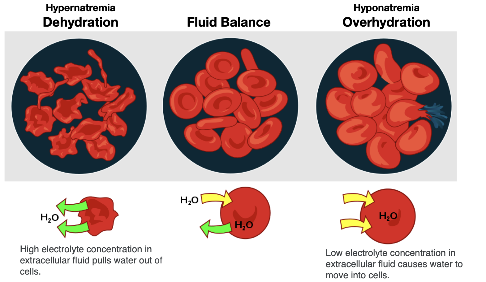 Three different hydration states are shown with the cell. With dehydration, the concentration of electrolytes becomes greater outside of cells, leading to water leaving cells and making them shrink. In fluid balance, electrolyte concentrations are equal inside and outside the cells, so water is in balance, too. During overhydration, electrolyte concentrations are low outside the cell relative to inside the cell (like in the situation of hyponatremia), so water moves into the cells, making them swell.