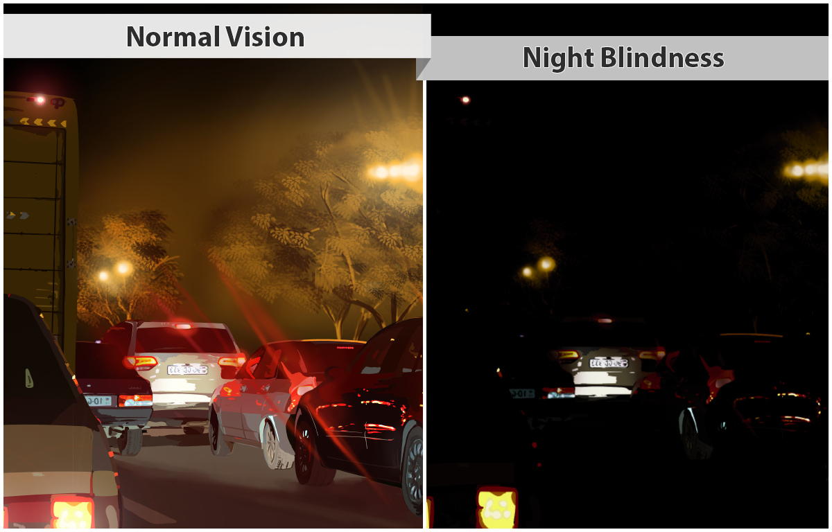 Two photos compare normal vision and night blindness. At left, normal night vision is shown in a photo of traffic at night, with light clearly visible from the car light and street lights. At right, night blindness is shown, with only dim lights from cars and street lights.