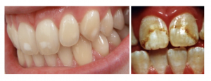 On the left is a close-up image of teeth with a mild case of fluorosis with small white spots forming on the teeth. A picture on the right shows a severe case of fluorosis in a close-up image of front teeth with significant white speckling, discoloration, and pitting.