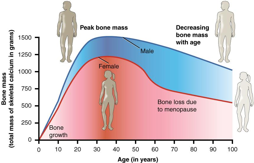 This graph shows bone mass (total mass os skeletal calcium in grams) on the y-axis, and age (in years) on the x-axis. It shows peak bone mass for both men and women is about 30 years of age, with men reaching a higher peak bone mass than women. It then shows a steady decline in peak bone mass with age, starting about 40, with women losing bone mass more quickly than men, especially during menopause.