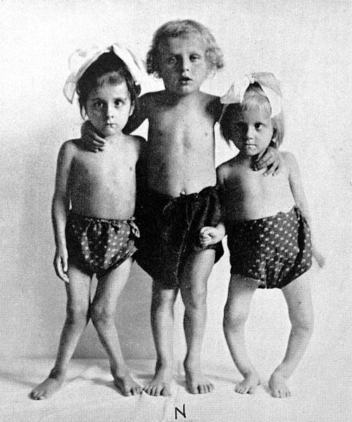 A black-and-white photograph shows three children with rickets, each with legs deformed to varying degrees. The child on the left has legs that bow inwards, her knees touching. The child on the right has legs that are bowed, with knees far apart.
