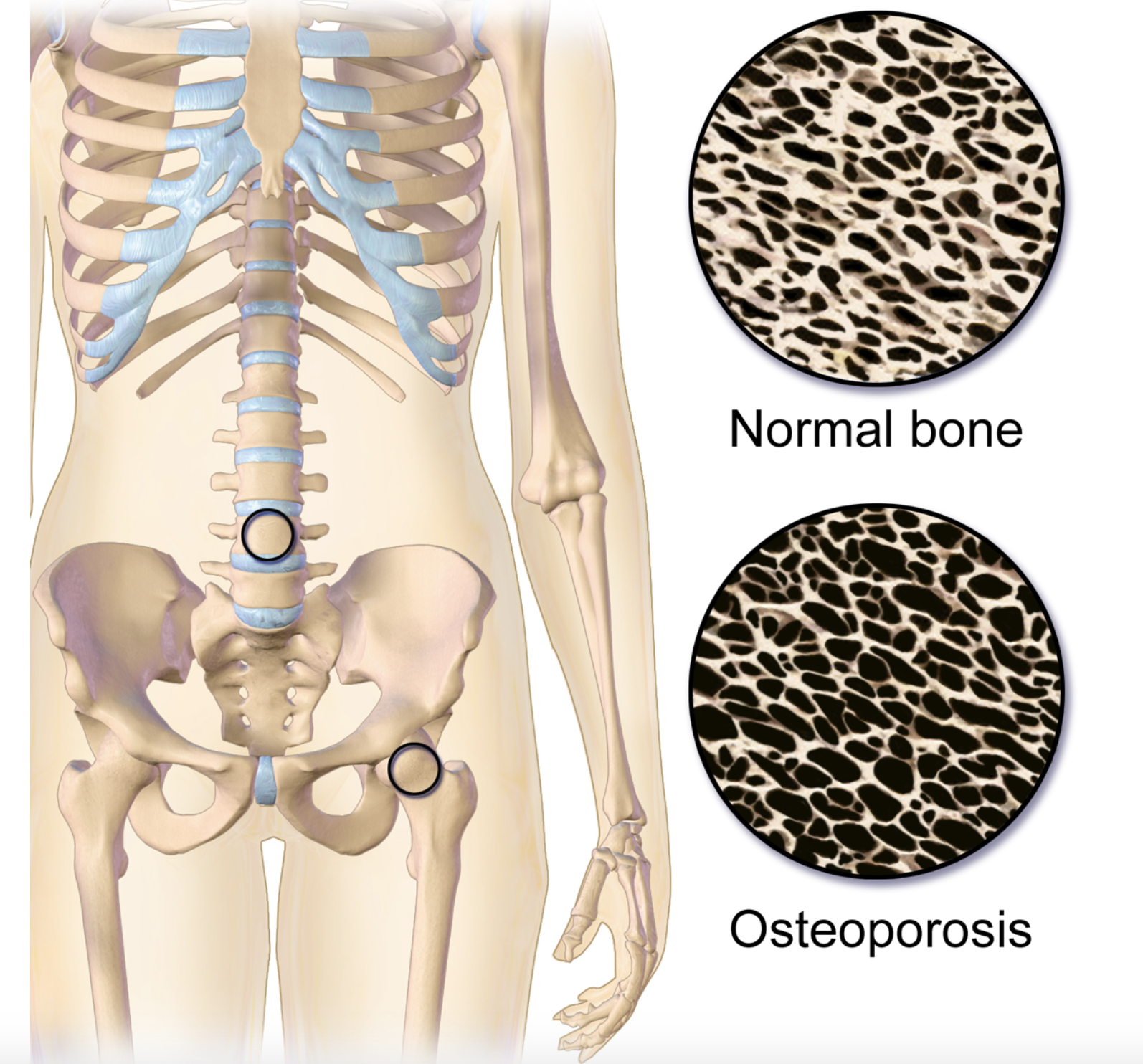 This is an animated image that shows the difference between the structure of normal bone which is less porous and bone with osteoporosis which is more porous.